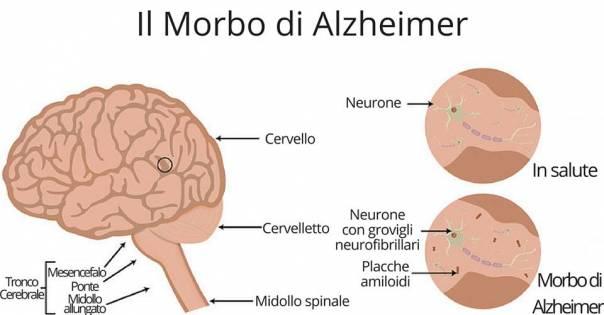 Alzheimer. Ecco la nuova tecnologia che ripristina la memoria