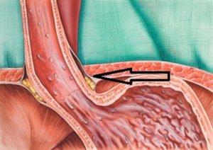 Reflusso gastrico. Cause, cura e cosa mangiare