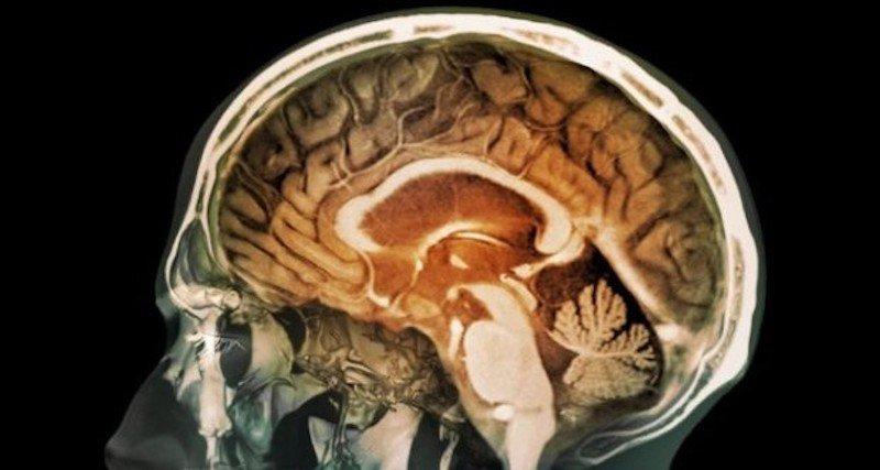 Cervello e inquinamento. 'Lo smog crea danni al tessuto cerebrale'